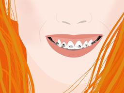 ¿La erupción de las muelas del juicio contribuye a apiñar el resto de los dientes?